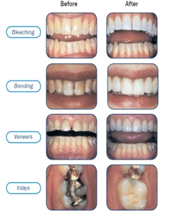 Bleaching, Bonding, Veneers, Inlays